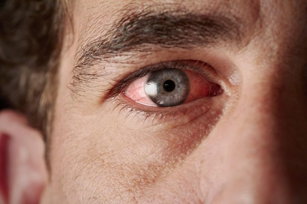 Đau mắt đỏ là gì? Nguyên nhân và cách phòng tránh